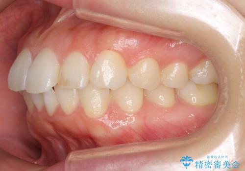 前歯のがたつき インビザラインでの治療前