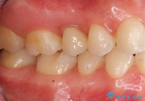 歯周病治療&セラミック治療の症例 治療後