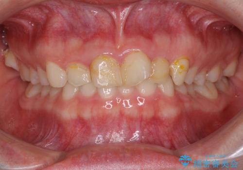 気になる前歯を美しく マウスピース矯正とセラミッククラウンの症例 治療前