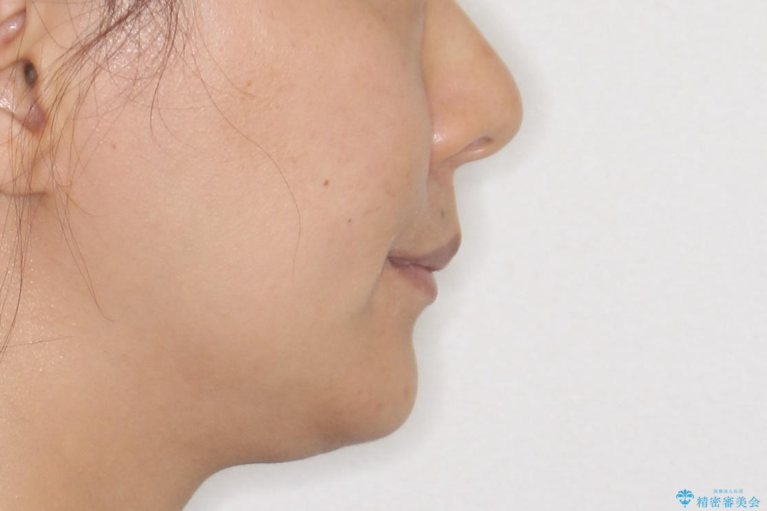 口元が出てるのが気になる 抜歯矯正でしっかりと前歯をさげてすっきりした口元への治療後(顔貌)
