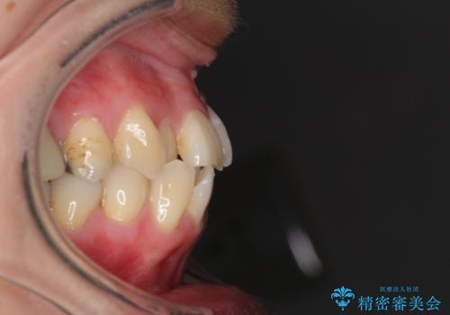 切端咬合をインビザライン矯正で解消の治療前