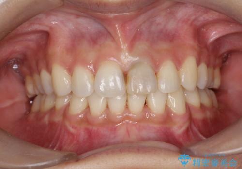 口元が出てるのが気になる 抜歯矯正でしっかりと前歯をさげてすっきりした口元への治療後