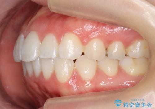 前歯のがたつき インビザラインでの治療後