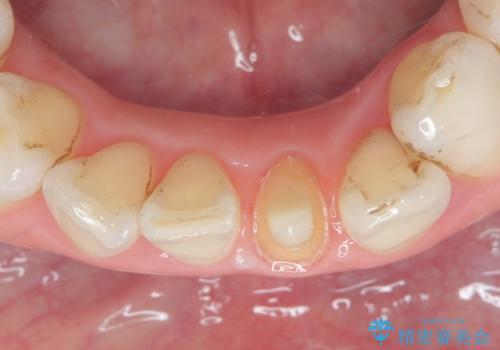オールセラミッククラウン 変色した前歯をセラミックで白くの治療中