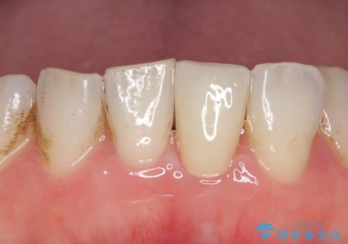 オールセラミッククラウン 変色した前歯をセラミックで白くの症例 治療後