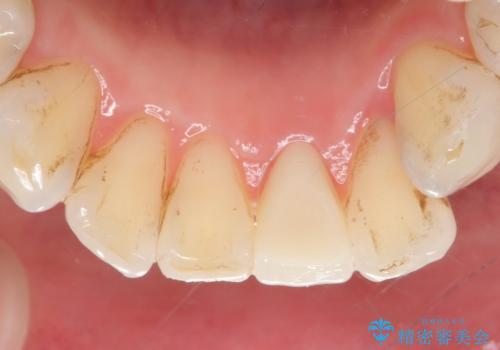 オールセラミッククラウン 変色した前歯をセラミックで白くの治療後