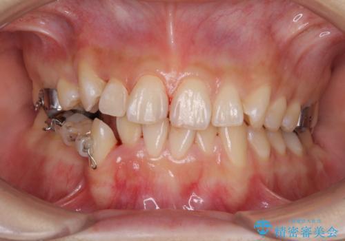 上下の八重歯を治したい 補助装置を用いたインビザライン矯正の治療中