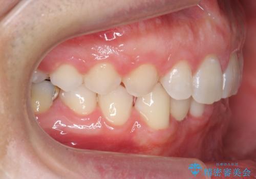 すきっ歯・出っ歯 コンプレックスの前歯を治したい 目立たない方法で セラミック治療は不可能な症例の治療後