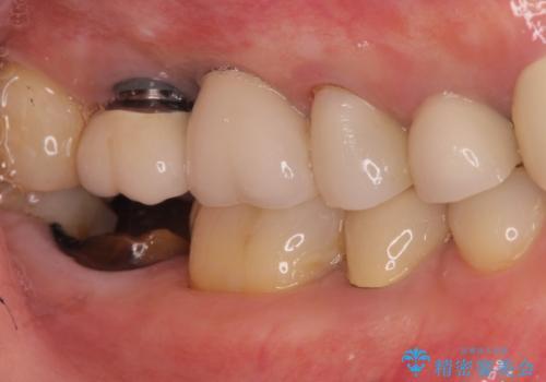 右下の奥歯を抜歯 インプラント治療による咬合回復の症例 治療前