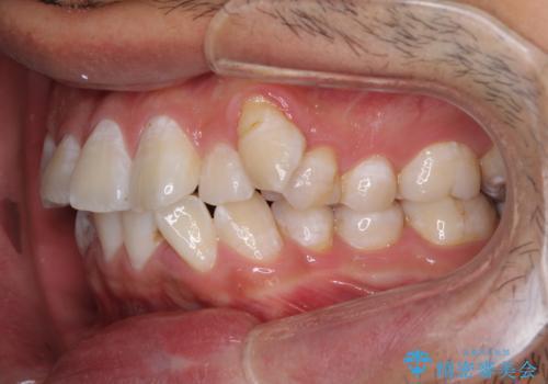 前歯の叢生を解消 ワイヤー装置での抜歯矯正の治療前