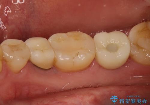 右下の奥歯を抜歯 インプラント治療による咬合回復の治療後