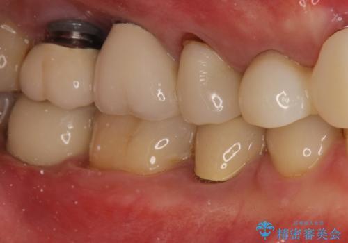 右下の奥歯を抜歯 インプラント治療による咬合回復の症例 治療後