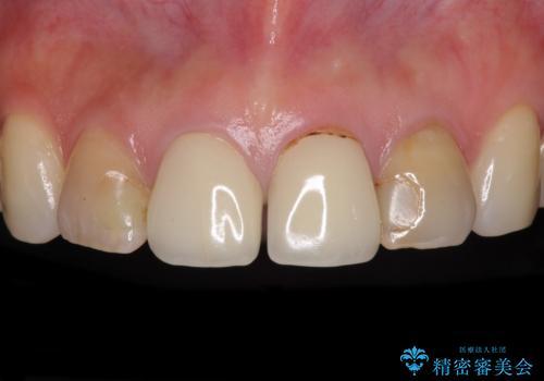 変色した歯をセラミックできれいにの症例 治療前