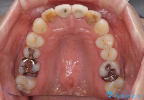 変色した歯をセラミックできれいにの治療前