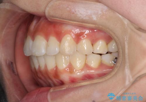 前歯のデコボコが気になる インビザラインによる矯正治療の治療中
