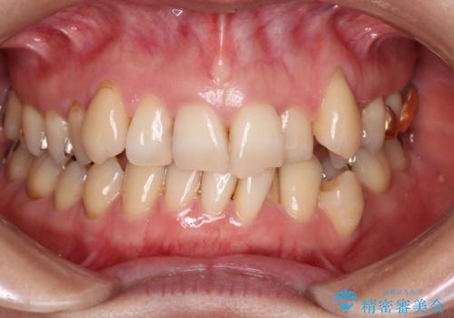 【非抜歯矯正】インビザラインによる矯正の症例 治療前