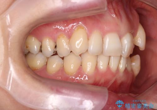 【非抜歯矯正】インビザラインによる矯正の治療前