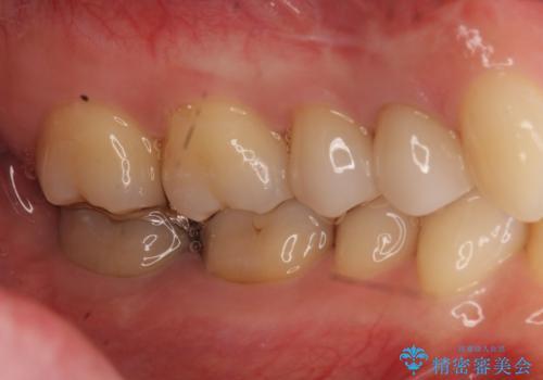 他院の根の治療で一向に治らない、さらに歯根を切ってもらったが良くならないの治療後