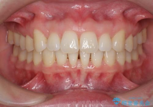 インビザライン で治す  出っ歯の治療の症例 治療後