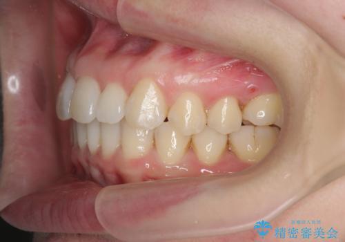インビザライン で治す  出っ歯の治療の治療後