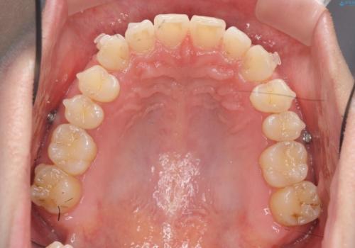 インビザライン で治す  出っ歯の治療の治療中