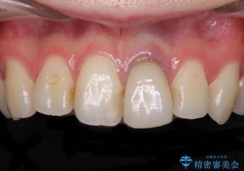 境目が見えている前歯のクラウンをオールセラミッククラウンにの症例 治療前
