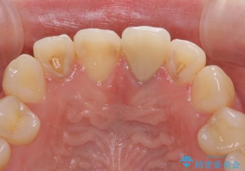 境目が見えている前歯のクラウンをオールセラミッククラウンにの治療前