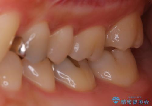 適合のよいセラミックで自分の歯となじむ自然な仕上がりにの治療前