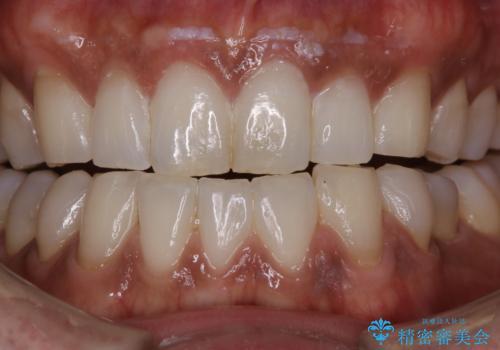PMTCで歯周病の予防の治療前
