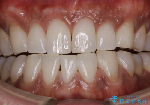 PMTCで歯周病の予防の治療後