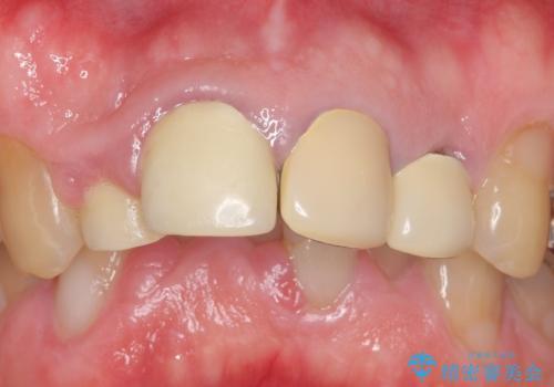 オールセラミッククラウン セラミックで前歯の見た目を改善の治療前
