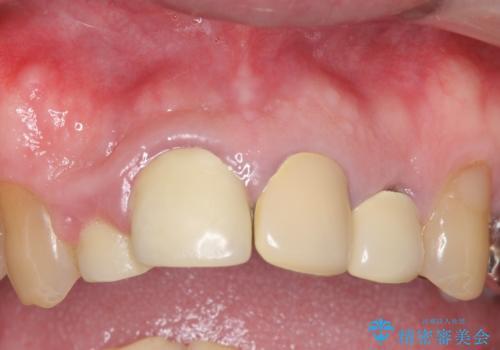 オールセラミッククラウン セラミックで前歯の見た目を改善の症例 治療前