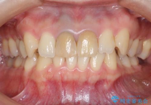 神経をとった前歯が変色してきたの治療前