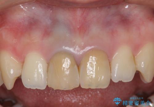 神経をとった前歯が変色してきたの症例 治療前
