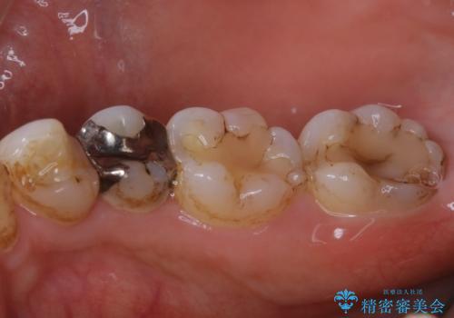 虫歯治療前のPMTCの治療前