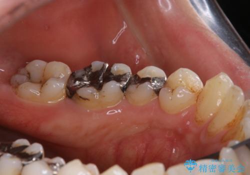 銀歯をセラミックに変える前にPMTCで現状の汚れをきれいに除去の治療前