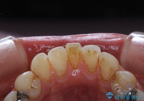 歯医者で専門的なクリーニングの治療前