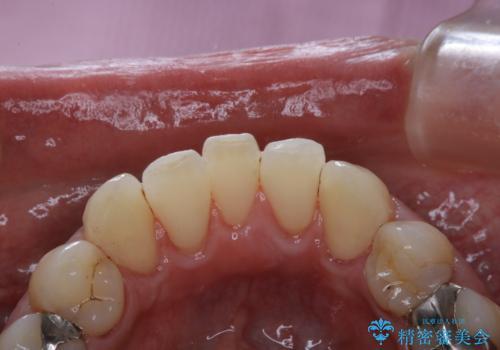 歯医者で専門的なクリーニングの治療後