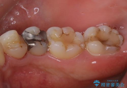 虫歯治療前のPMTCの治療後