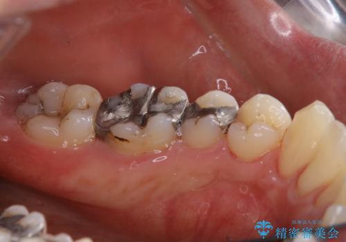 銀歯をセラミックに変える前にPMTCで現状の汚れをきれいに除去の治療後