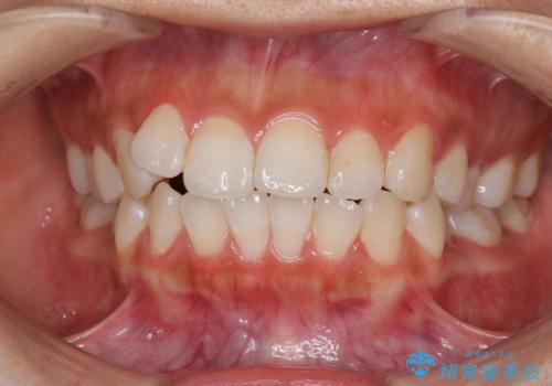 前歯のデコボコが気になる インビザラインによる矯正治療の症例 治療前
