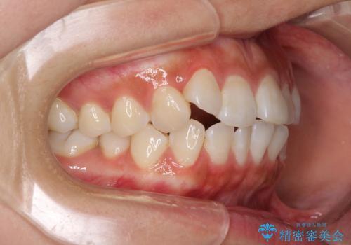 前歯のデコボコが気になる インビザラインによる矯正治療の治療前