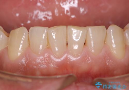 定期健診で歯のクリーニングの治療前