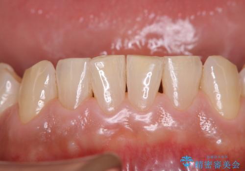 定期健診で歯のクリーニングの治療後