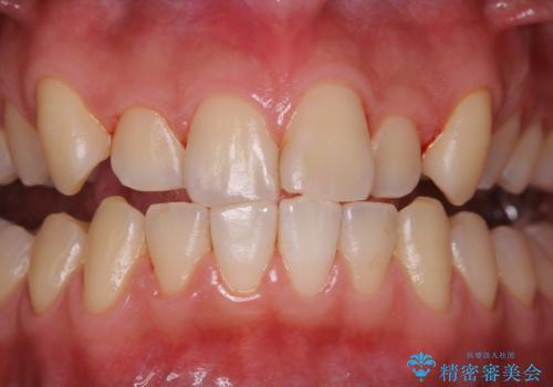 矯正治療を始める前に歯磨き指導とPMTCの治療後