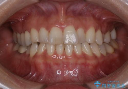 PMTCでツルツルの歯にの治療前