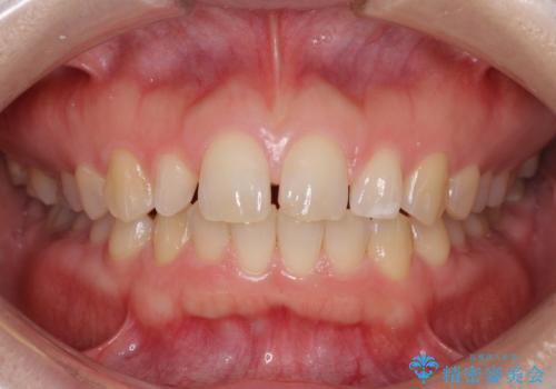前歯の歯並びと小さい歯を改善 インビザラインとオールセラミッククラウンの症例 治療前