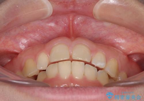 前歯の歯並びと小さい歯を改善 インビザラインとオールセラミッククラウンの治療前