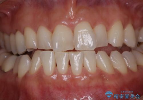 PMTCでツルツルの歯にの治療後