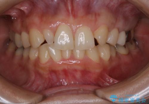 笑うとキラリと光る銀歯を何とかしたい:適合の良いセラミックで長持ちする歯にの症例 治療後